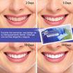 Imagen de Tiras blanqueadoras de dientes